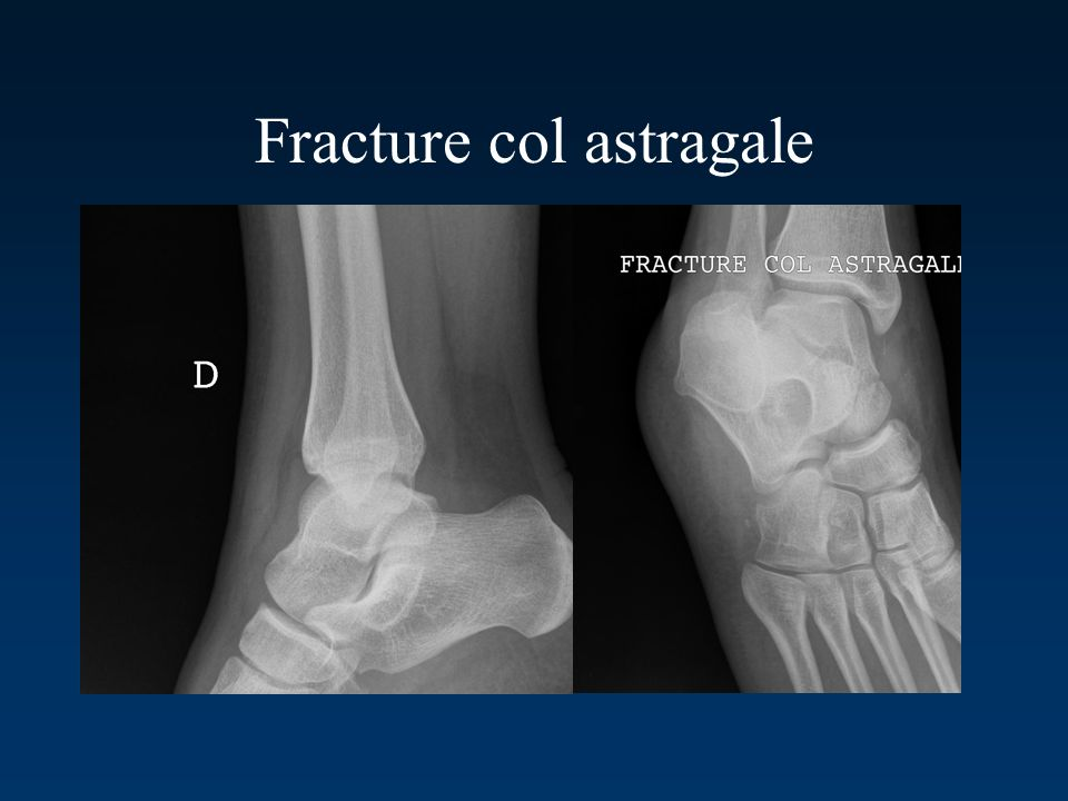 Fracture col astragale