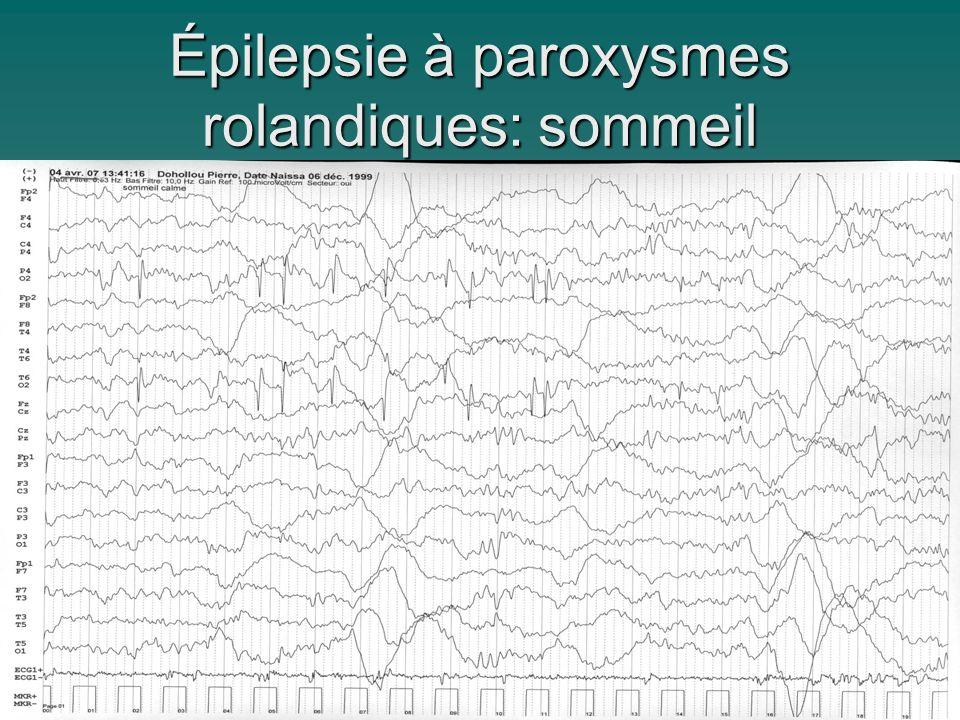 Épilepsie à paroxysmes rolandiques: sommeil