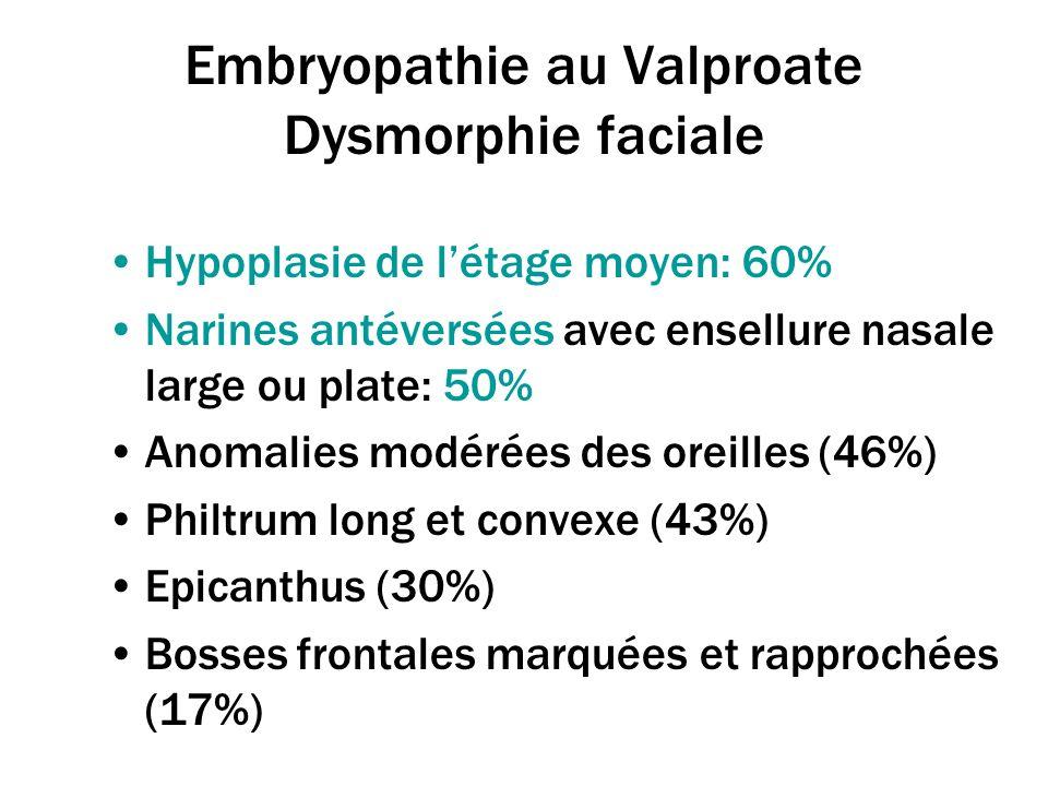 Embryopathie au Valproate Dysmorphie faciale Hypoplasie de létage moyen: 60% Narines antéversées avec ensellure nasale large ou plate: 50% Anomalies m