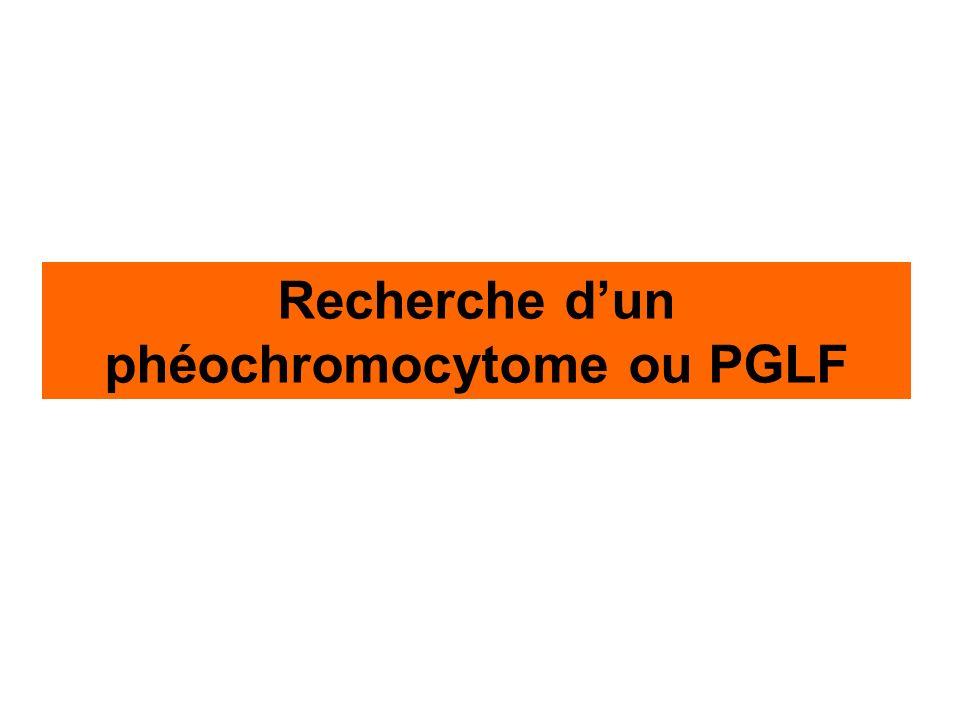HTA résistante, HTA paroxystique, incidentalome, maladie familiale 1 Recherche dun phéochromocytome (PH) ou paragangliome fonctionnel (PGLF) Dosage des métanéphrines (MN) 2 MN seuil = PH ou PGLF Pas de PH ou PGLF 3 TDM (IRM) abdomino-pelvienne 4 Scintigraphie corps entier à la 123 I-MIBG 5 Tumeur(s) Normale Tumeur(s) Dosage post-opératoire des MN Surrénalectomie (cœlioscopie) ou exérèse PGLF MN seuil Suivi indéfini clinique et des MN 123 I-MIBG ou 18 F-FDG PET Scintigraphie à lOctréotide ou 18F-FDG PET.