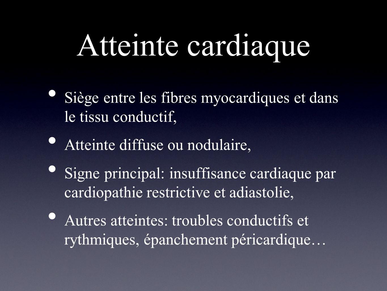Atteinte cardiaque Siège entre les fibres myocardiques et dans le tissu conductif, Atteinte diffuse ou nodulaire, Signe principal: insuffisance cardia