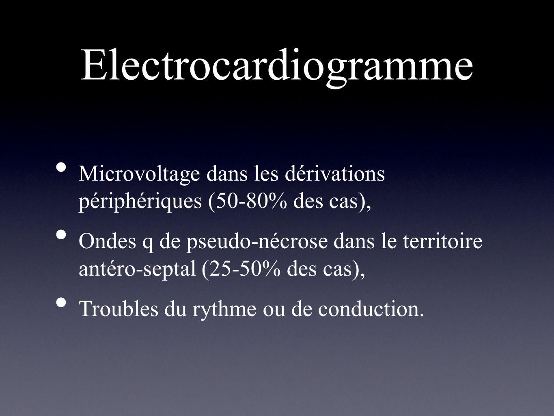 Electrocardiogramme Microvoltage dans les dérivations périphériques (50-80% des cas), Ondes q de pseudo-nécrose dans le territoire antéro-septal (25-5