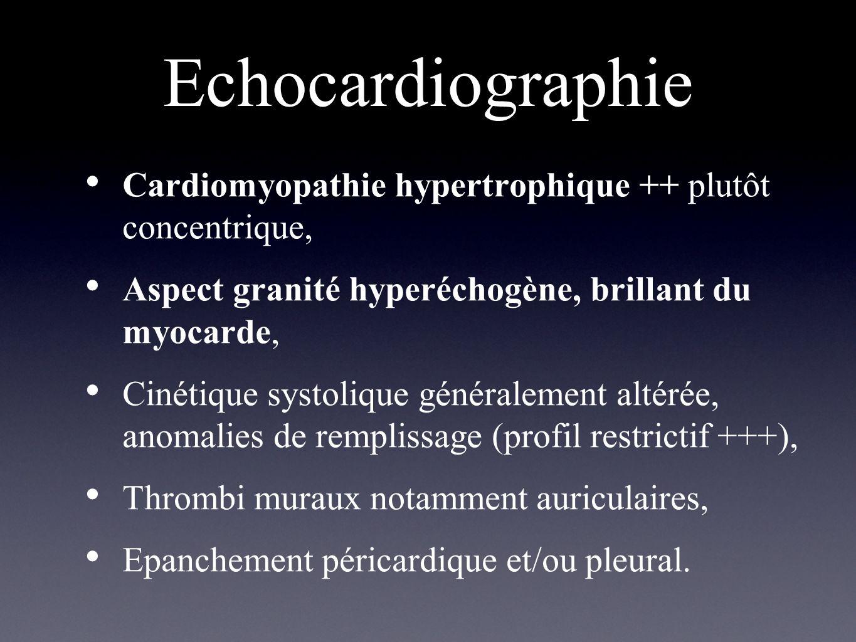 Echocardiographie Cardiomyopathie hypertrophique ++ plutôt concentrique, Aspect granité hyperéchogène, brillant du myocarde, Cinétique systolique géné