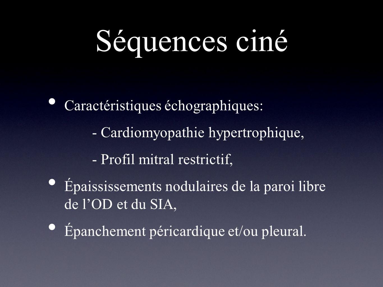 Séquences ciné Caractéristiques échographiques: - Cardiomyopathie hypertrophique, - Profil mitral restrictif, Épaississements nodulaires de la paroi l