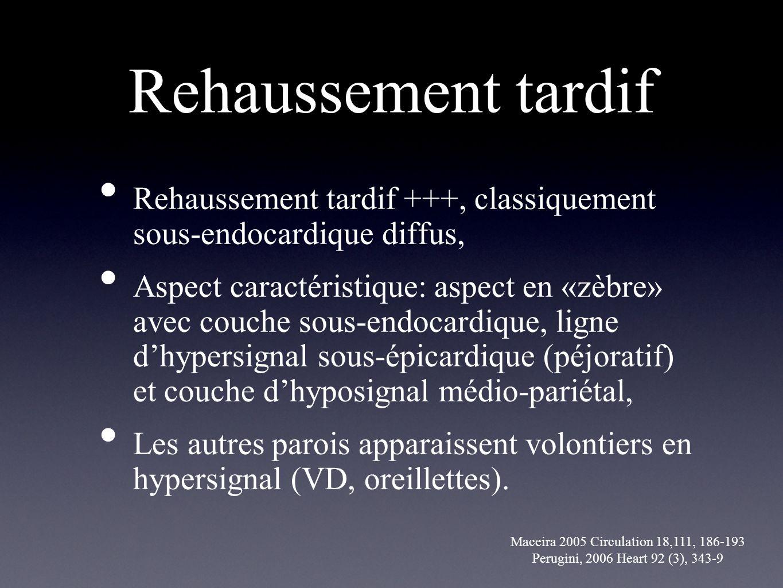 Rehaussement tardif Rehaussement tardif +++, classiquement sous-endocardique diffus, Aspect caractéristique: aspect en «zèbre» avec couche sous-endoca