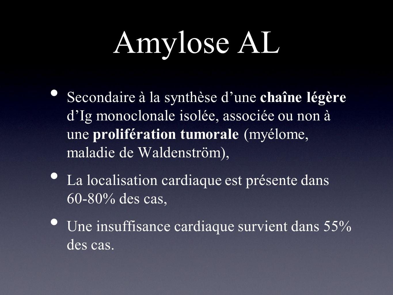 Amylose AA = amylose inammatoire, Secondaire à une pathologie inammatoire ou cancéreuse, Latteinte cardiaque est rare, décrite essentiellement dans la polyarthrite chronique juvénile et la maladie de Still de ladulte, Exceptionnellement symptomatique.