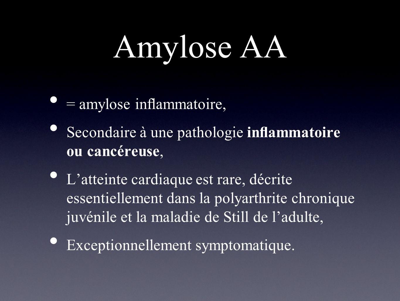 Autres amyloses Amyloses héréditaires : maladies autosomiques dominantes, protéine majoritairement impliquée: transthyrétine, hétérogénéité clinique ++, Amylose cardiaque sénile : atteinte cardiaque dans 25 % des cas, après 80 ans, avec un pronostic sévère, Amylose auriculaire isolée : son incidence croît avec lâge mais avec des conséquences cliniques mineures, en général asymptomatiques.