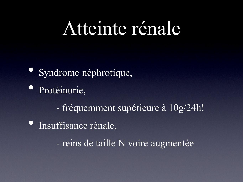 Atteinte rénale Syndrome néphrotique, Protéinurie, - fréquemment supérieure à 10g/24h! Insuffisance rénale, - reins de taille N voire augmentée