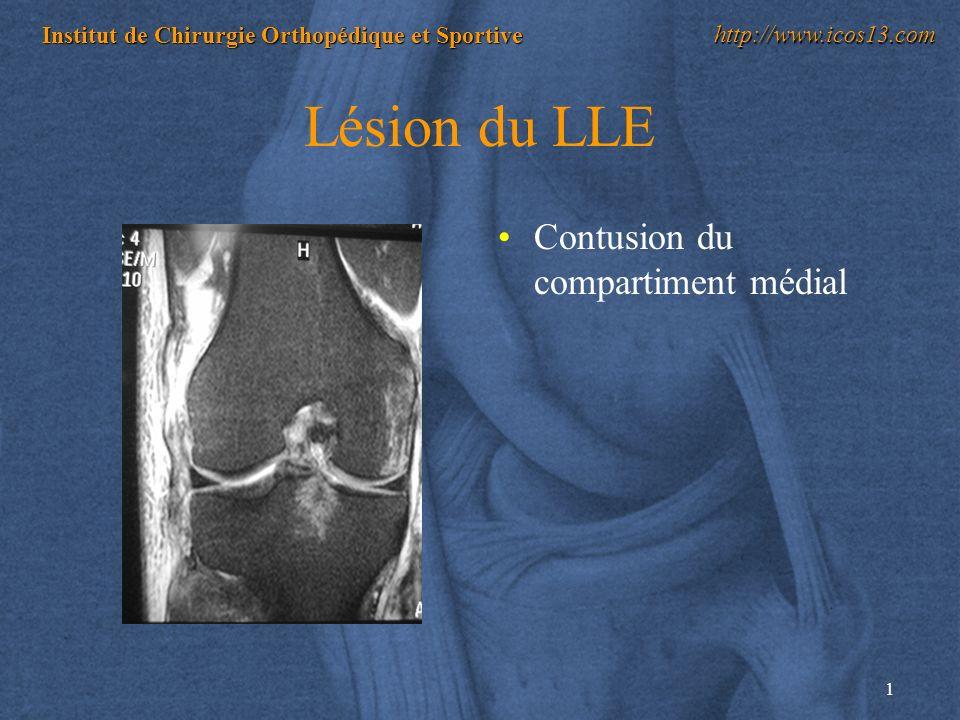 1 Institut de Chirurgie Orthopédique et Sportive http://www.icos13.com Lésion du LLE Contusion du compartiment médial