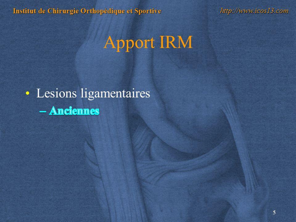 5 Institut de Chirurgie Orthopédique et Sportive http://www.icos13.com Apport IRM