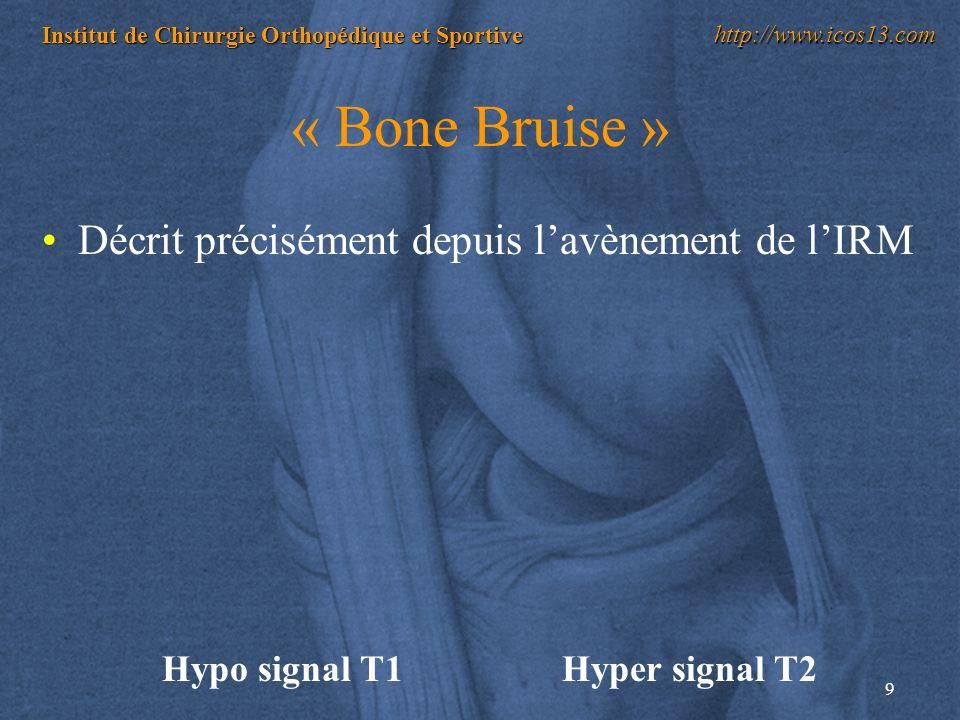 9 Institut de Chirurgie Orthopédique et Sportive http://www.icos13.com « Bone Bruise » Décrit précisément depuis lavènement de lIRM Hypo signal T1Hype