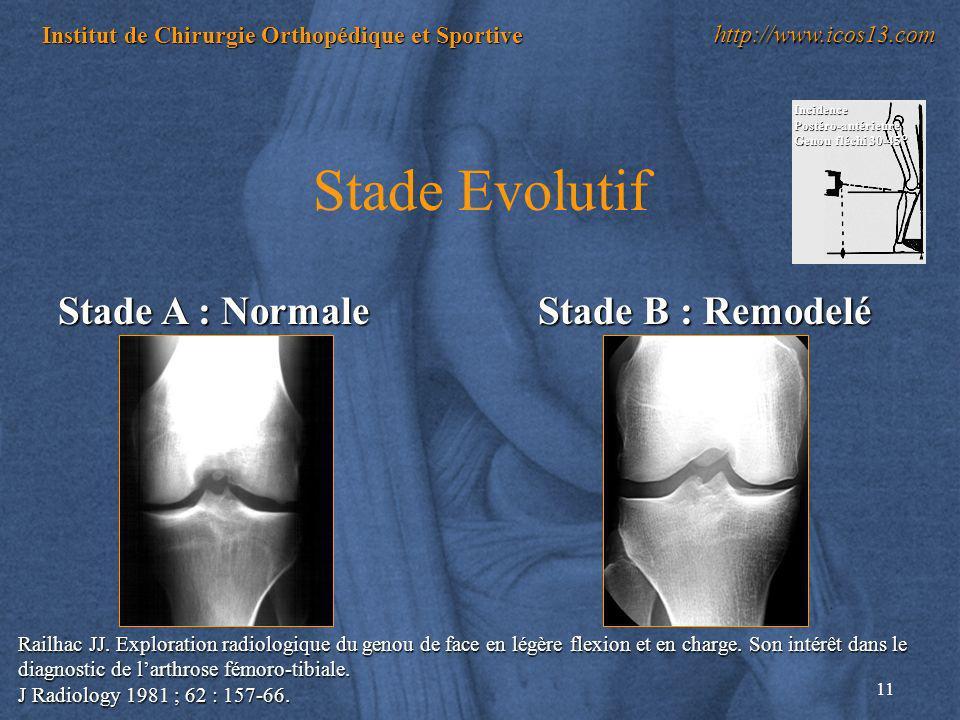 11 Institut de Chirurgie Orthopédique et Sportive http://www.icos13.com Stade Evolutif Stade A : Normale Railhac JJ. Exploration radiologique du genou