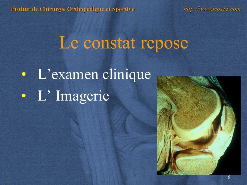 17 Institut de Chirurgie Orthopédique et Sportive http://www.icos13.com DEGENERATIVES = USURE DU MENISQUE