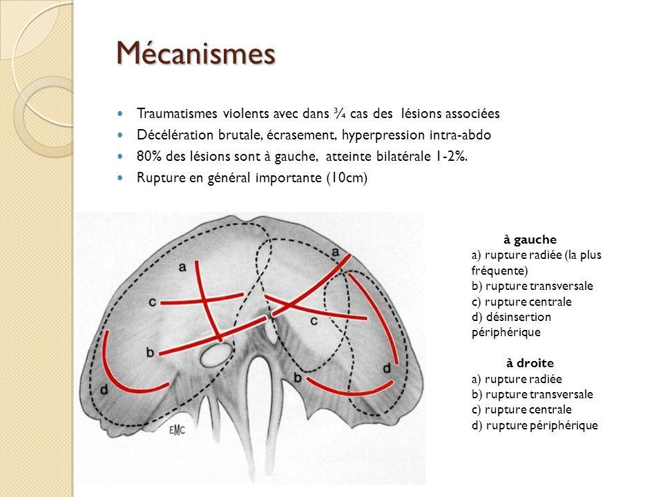 Mécanismes Traumatismes violents avec dans ¾ cas des lésions associées Décélération brutale, écrasement, hyperpression intra-abdo 80% des lésions sont