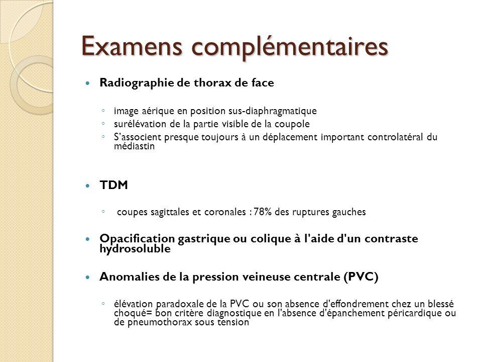 Examens complémentaires Radiographie de thorax de face image aérique en position sus-diaphragmatique surélévation de la partie visible de la coupole S