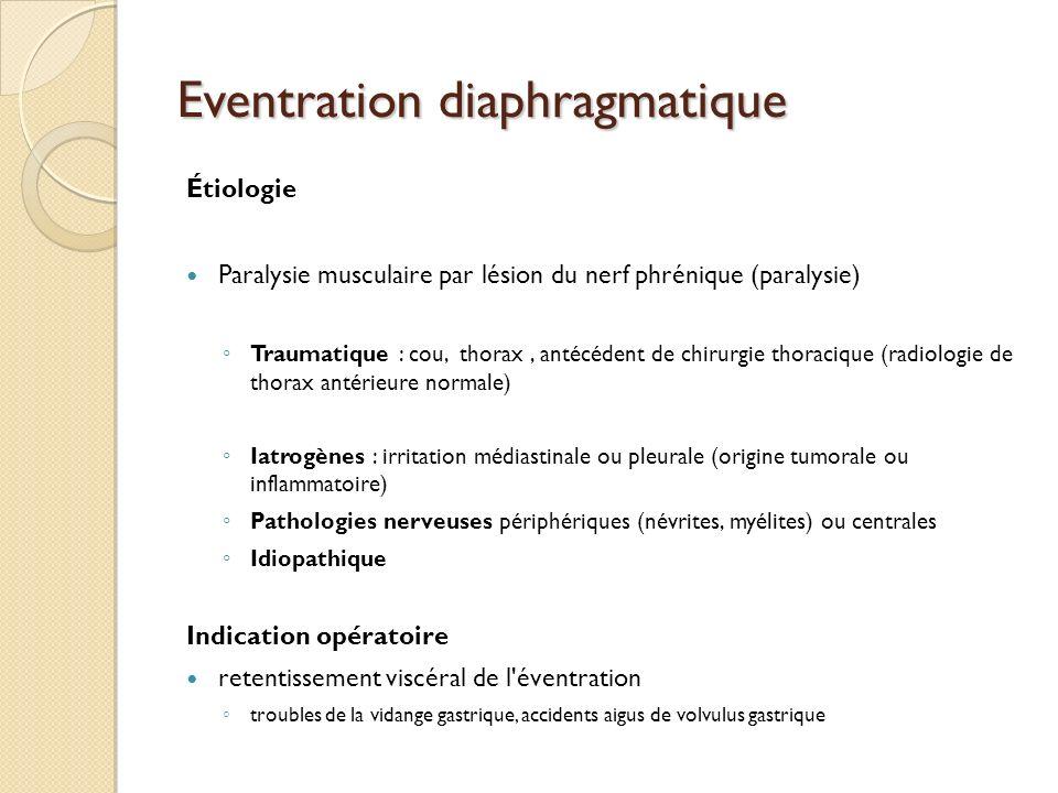 Eventration diaphragmatique Étiologie Paralysie musculaire par lésion du nerf phrénique (paralysie) Traumatique : cou, thorax, antécédent de chirurgie