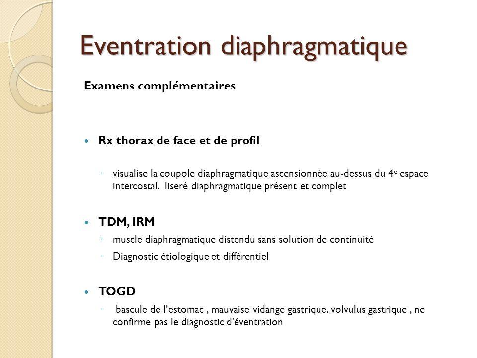 Eventration diaphragmatique Examens complémentaires Rx thorax de face et de profil visualise la coupole diaphragmatique ascensionnée au-dessus du 4 e