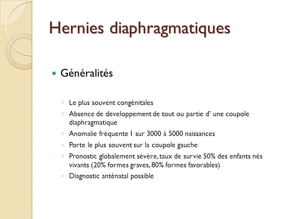 Hernies diaphragmatiques Généralités Le plus souvent congénitales Absence de developpement de tout ou partie d une coupole diaphragmatique Anomalie fr