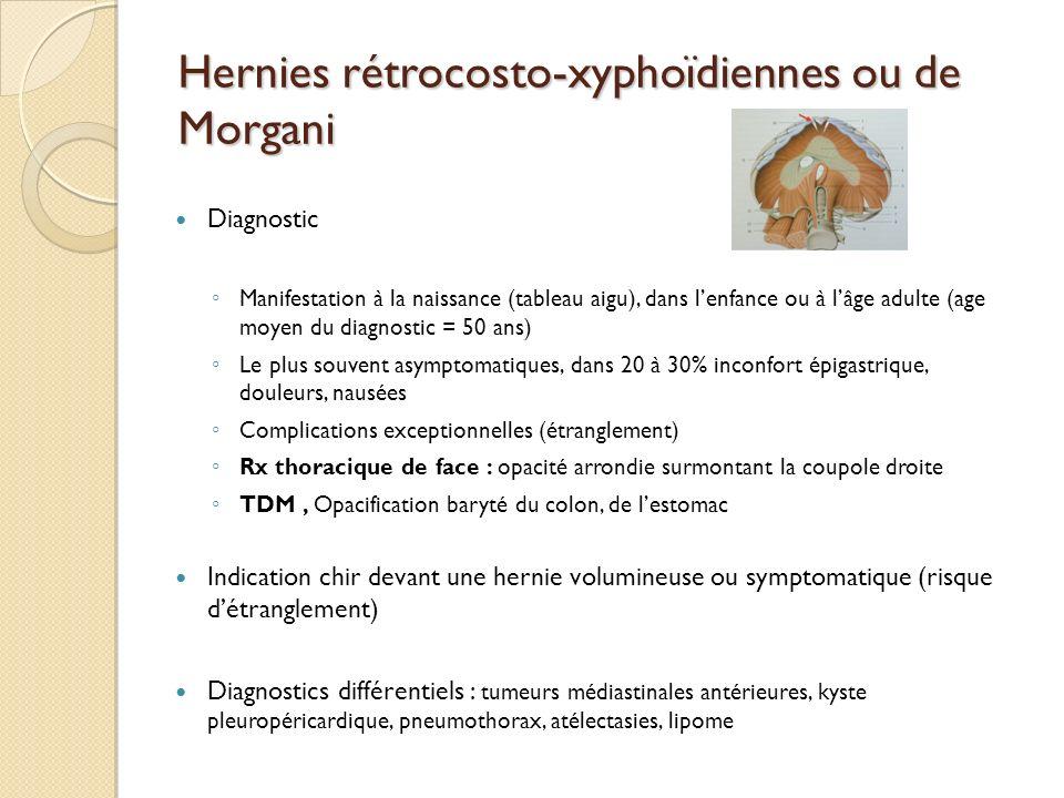 Hernies rétrocosto-xyphoïdiennes ou de Morgani Diagnostic Manifestation à la naissance (tableau aigu), dans lenfance ou à lâge adulte (age moyen du di