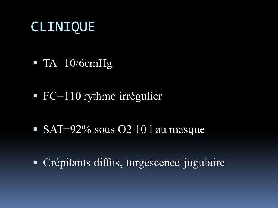 CLINIQUE TA=10/6cmHg FC=110 rythme irrégulier SAT=92% sous O2 10 l au masque Crépitants diffus, turgescence jugulaire