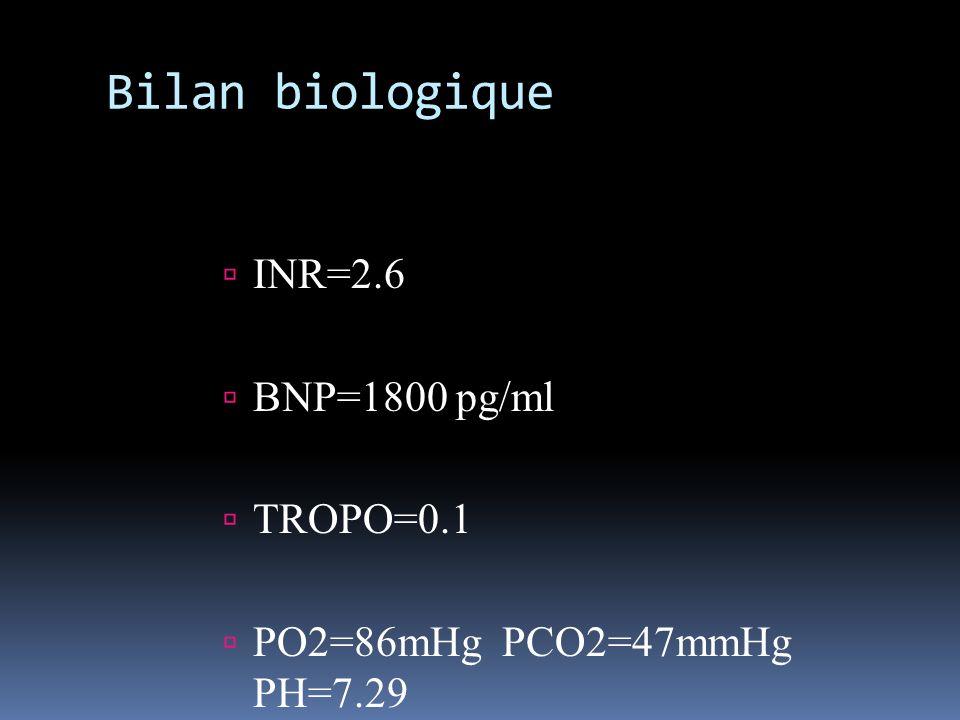 Bilan biologique INR=2.6 BNP=1800 pg/ml TROPO=0.1 PO2=86mHg PCO2=47mmHg PH=7.29
