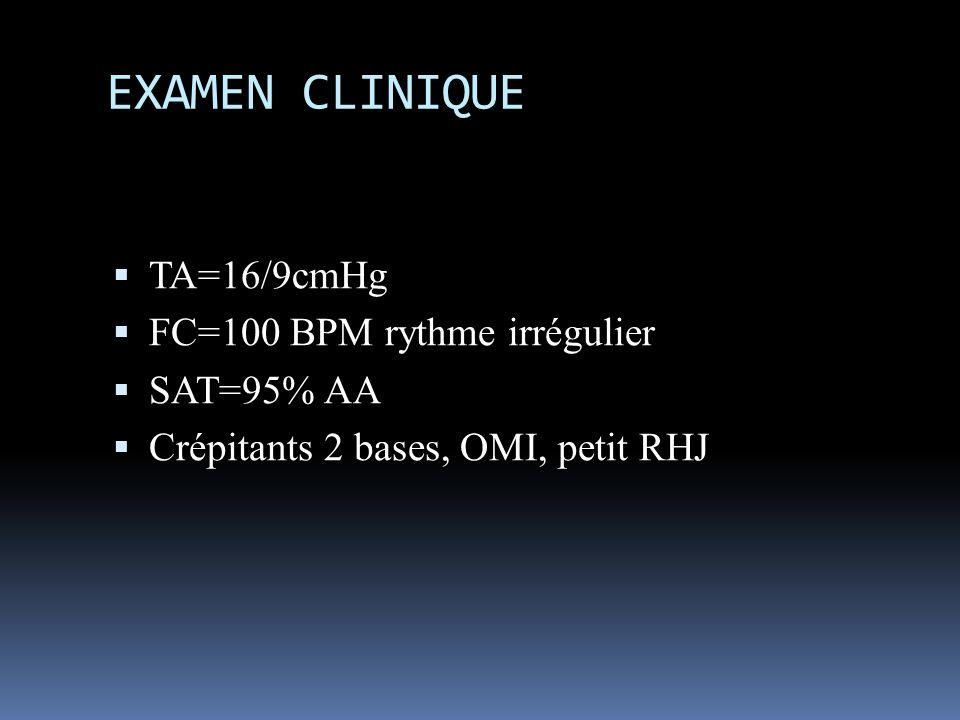 EXAMEN CLINIQUE TA=16/9cmHg FC=100 BPM rythme irrégulier SAT=95% AA Crépitants 2 bases, OMI, petit RHJ