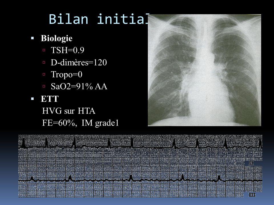 Bilan initial Biologie TSH=0.9 D-dimères=120 Tropo=0 SaO2=91% AA ETT HVG sur HTA FE=60%, IM grade1 Radio de thorax Sub OAP ECG