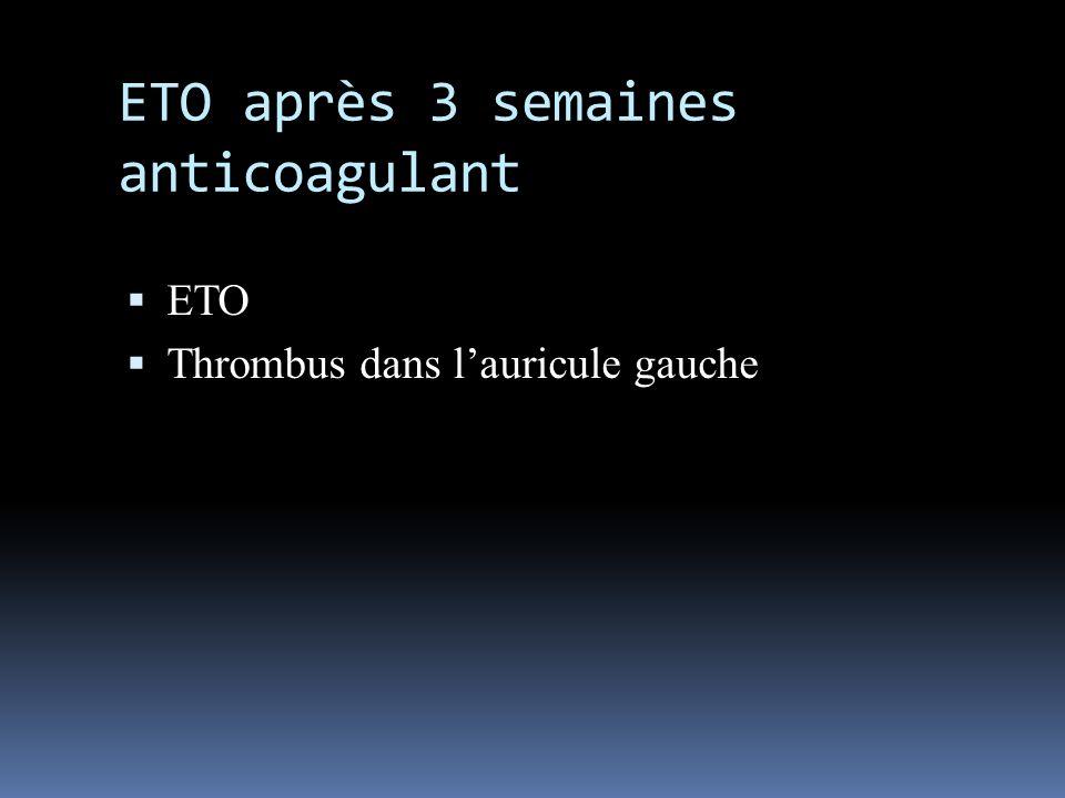 ETO après 3 semaines anticoagulant ETO Thrombus dans lauricule gauche
