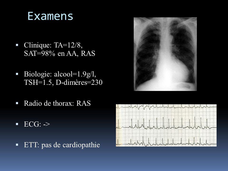 diagnostic État de choc cardiogénique et OAP massif compliquant une AC/FA paroxystique Hypotension artérielle Tachycardie Désaturation très importante, malgré le masque HC = OAP Marbrures, cyanose, oligurie, = EDC Cardio DRA (tirage supraclaviculaire, respi abdominale) =OAP EDC Cardiogénique