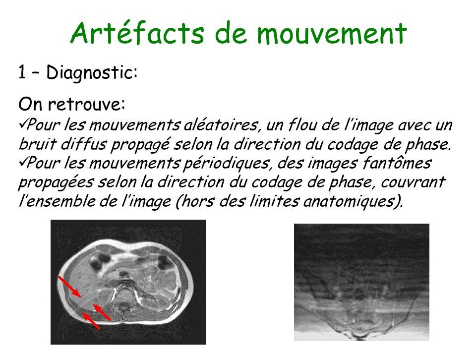 Artéfacts de mouvement 1 – Diagnostic: On retrouve: Pour les mouvements aléatoires, un flou de limage avec un bruit diffus propagé selon la direction
