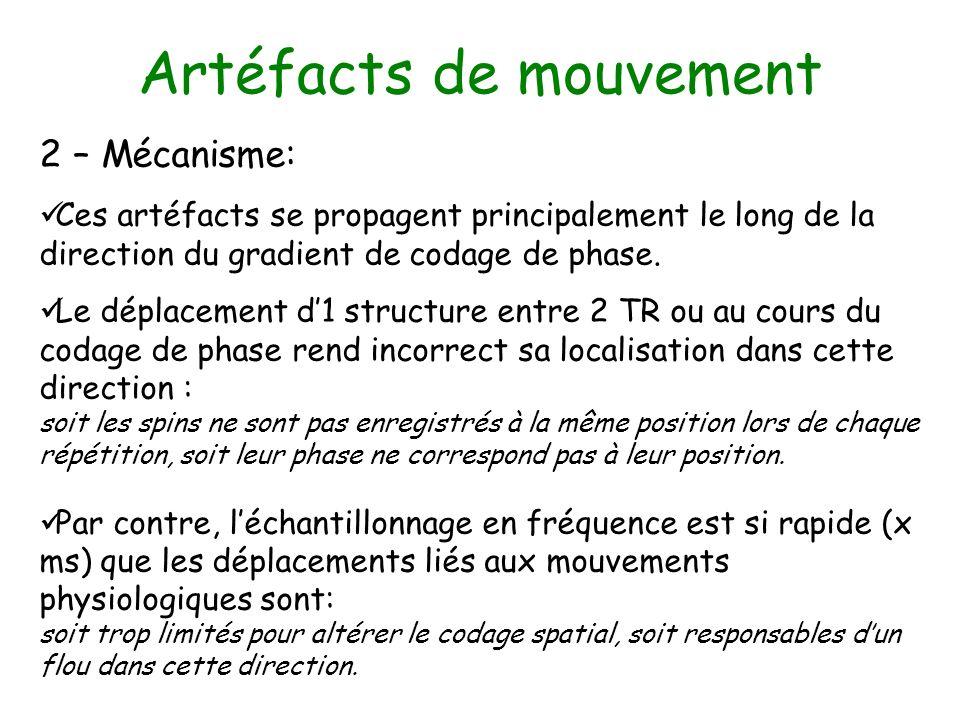 Artéfacts de mouvement 2 – Mécanisme: Ces artéfacts se propagent principalement le long de la direction du gradient de codage de phase. Le déplacement
