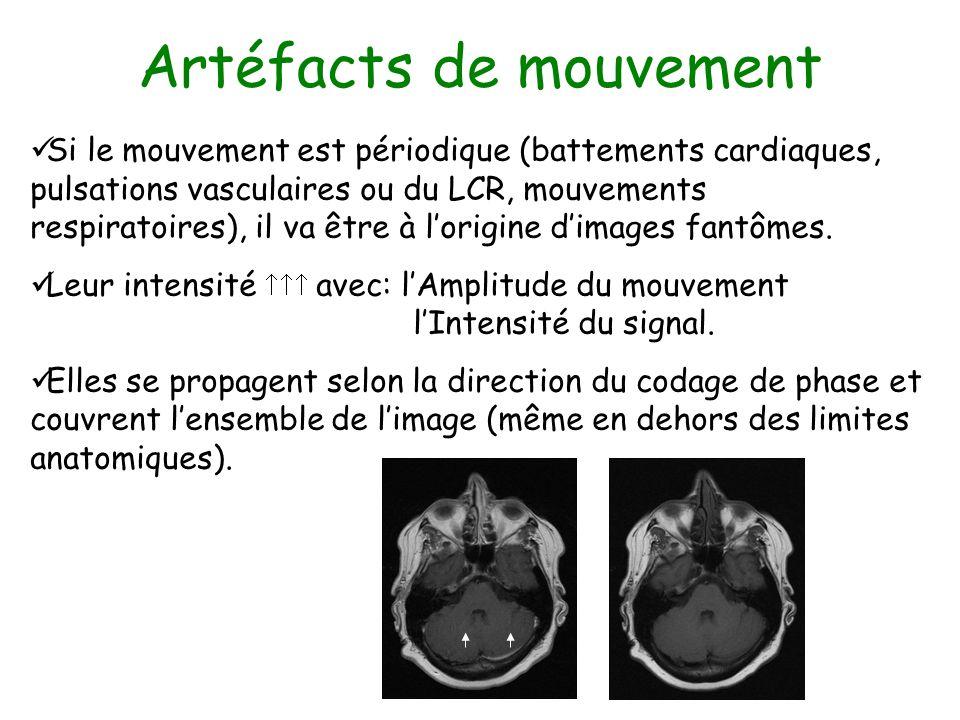 Artéfacts de mouvement Si le mouvement est périodique (battements cardiaques, pulsations vasculaires ou du LCR, mouvements respiratoires), il va être