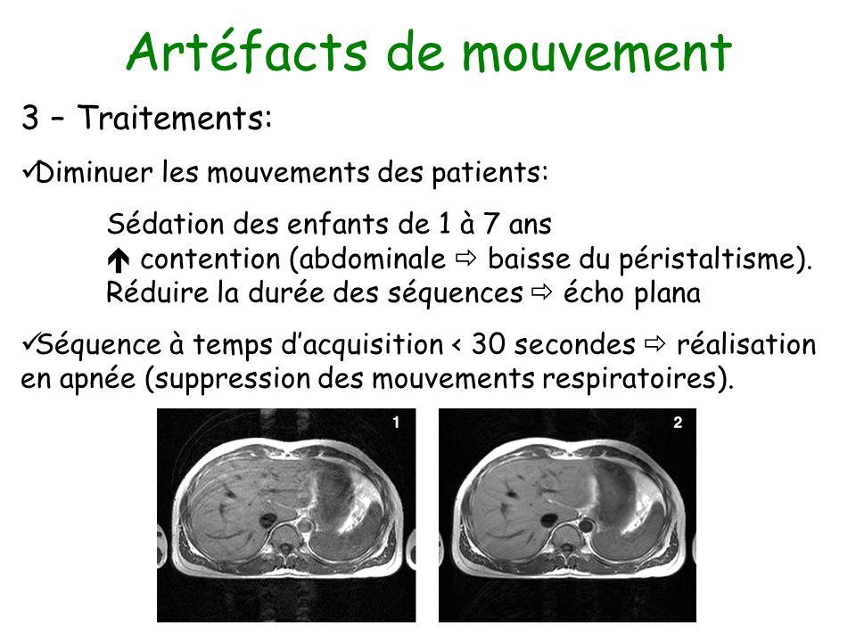 Artéfacts de mouvement 3 – Traitements: Diminuer les mouvements des patients: Sédation des enfants de 1 à 7 ans contention (abdominale baisse du péris