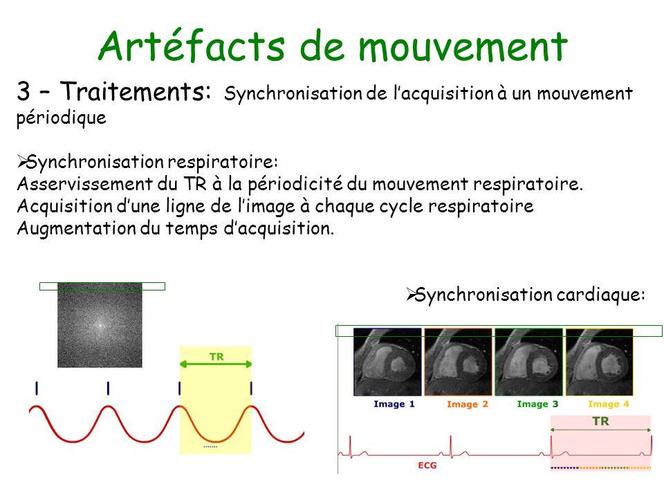 Artéfacts de mouvement 3 – Traitements: Synchronisation de lacquisition à un mouvement périodique Synchronisation respiratoire: Asservissement du TR à