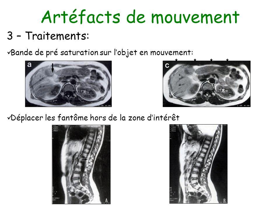 Artéfacts de mouvement 3 – Traitements: Bande de pré saturation sur lobjet en mouvement: Déplacer les fantôme hors de la zone dintérêt
