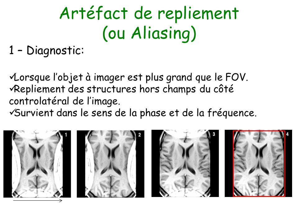 Artéfact de repliement (ou Aliasing) 1 – Diagnostic: Lorsque lobjet à imager est plus grand que le FOV. Repliement des structures hors champs du côté