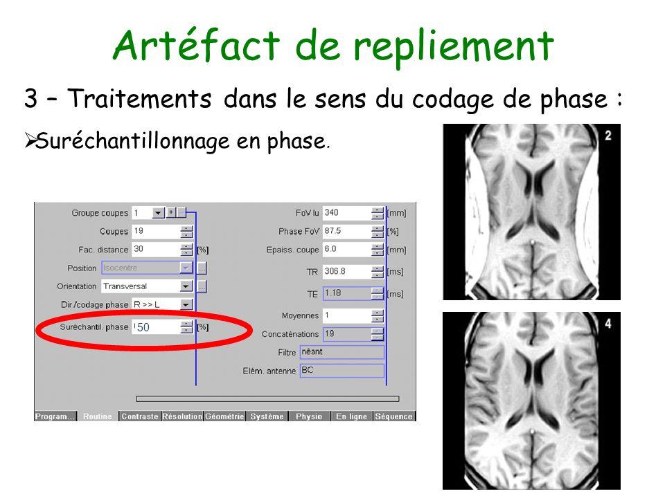 Artéfact de repliement 3 – Traitements dans le sens du codage de phase : Suréchantillonnage en phase. 50