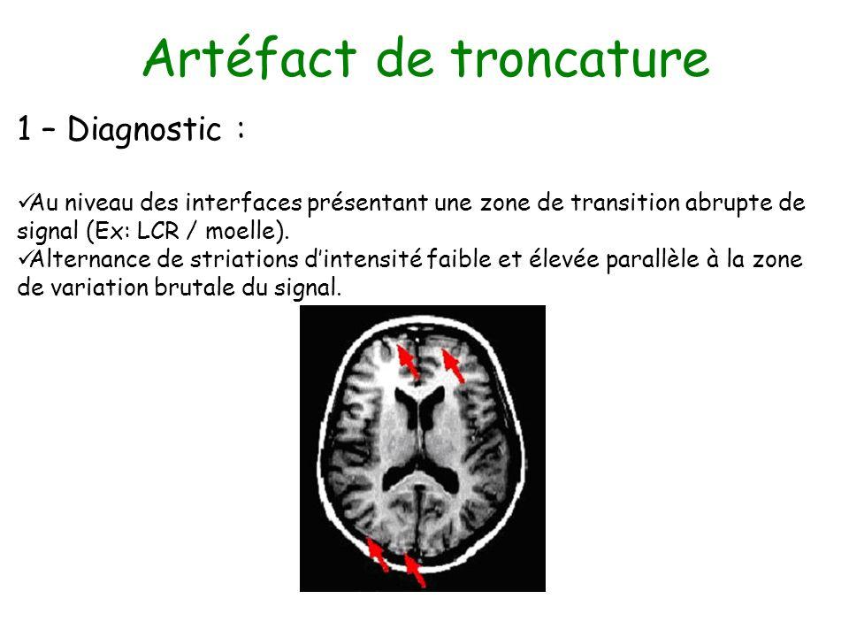 Artéfact de troncature 1 – Diagnostic : Au niveau des interfaces présentant une zone de transition abrupte de signal (Ex: LCR / moelle). Alternance de