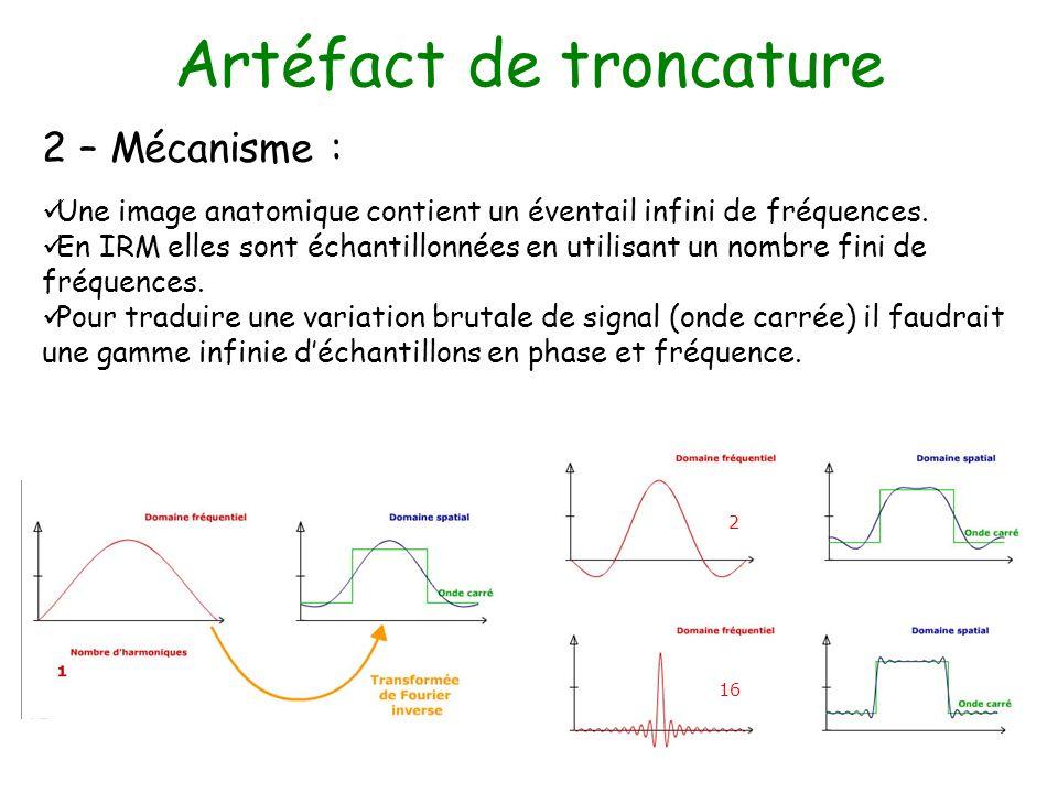 Artéfact de troncature 2 – Mécanisme : Une image anatomique contient un éventail infini de fréquences. En IRM elles sont échantillonnées en utilisant