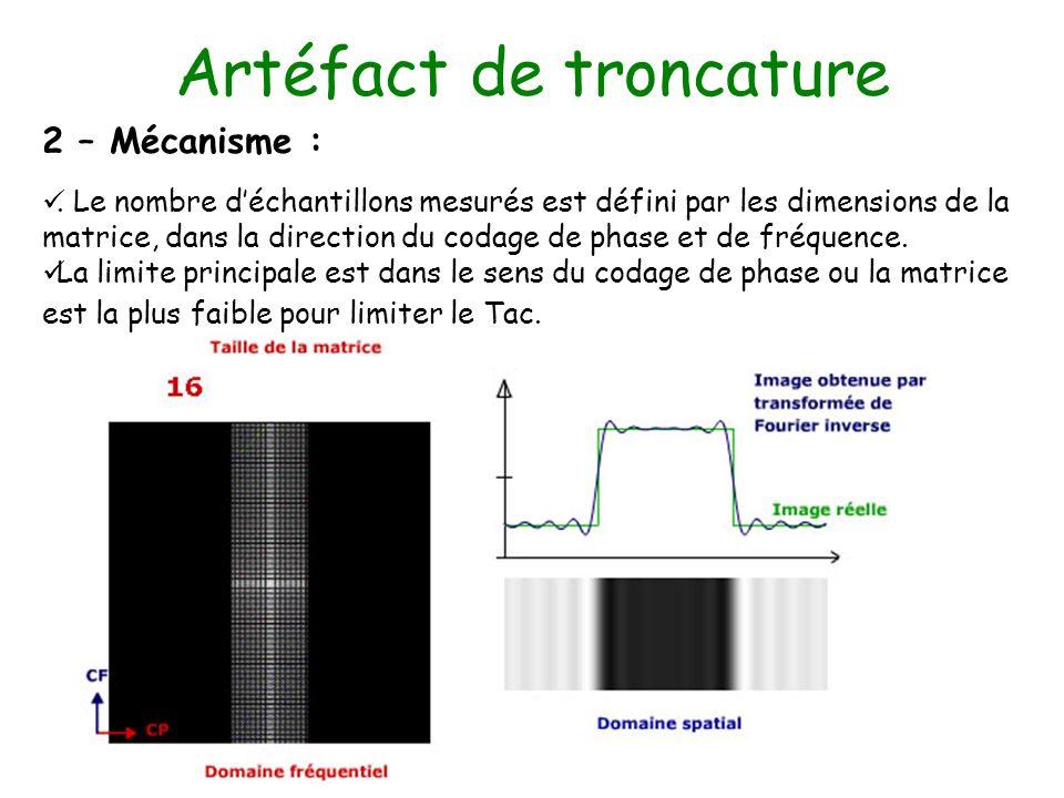 Artéfact de troncature 2 – Mécanisme :. Le nombre déchantillons mesurés est défini par les dimensions de la matrice, dans la direction du codage de ph