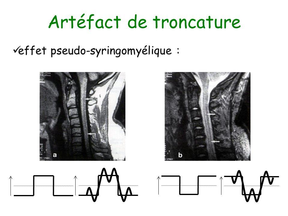 Artéfact de troncature effet pseudo-syringomyélique :