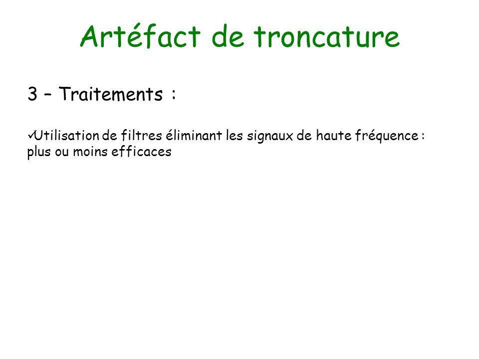 Artéfact de troncature 3 – Traitements : Utilisation de filtres éliminant les signaux de haute fréquence : plus ou moins efficaces