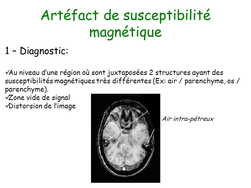 Artéfact de susceptibilité magnétique 1 – Diagnostic: Au niveau dune région où sont juxtaposées 2 structures ayant des susceptibilités magnétiques trè