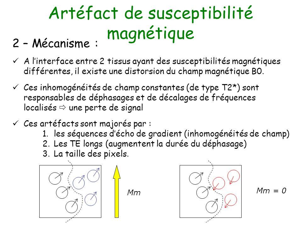 Artéfact de susceptibilité magnétique 2 – Mécanisme : A linterface entre 2 tissus ayant des susceptibilités magnétiques différentes, il existe une dis
