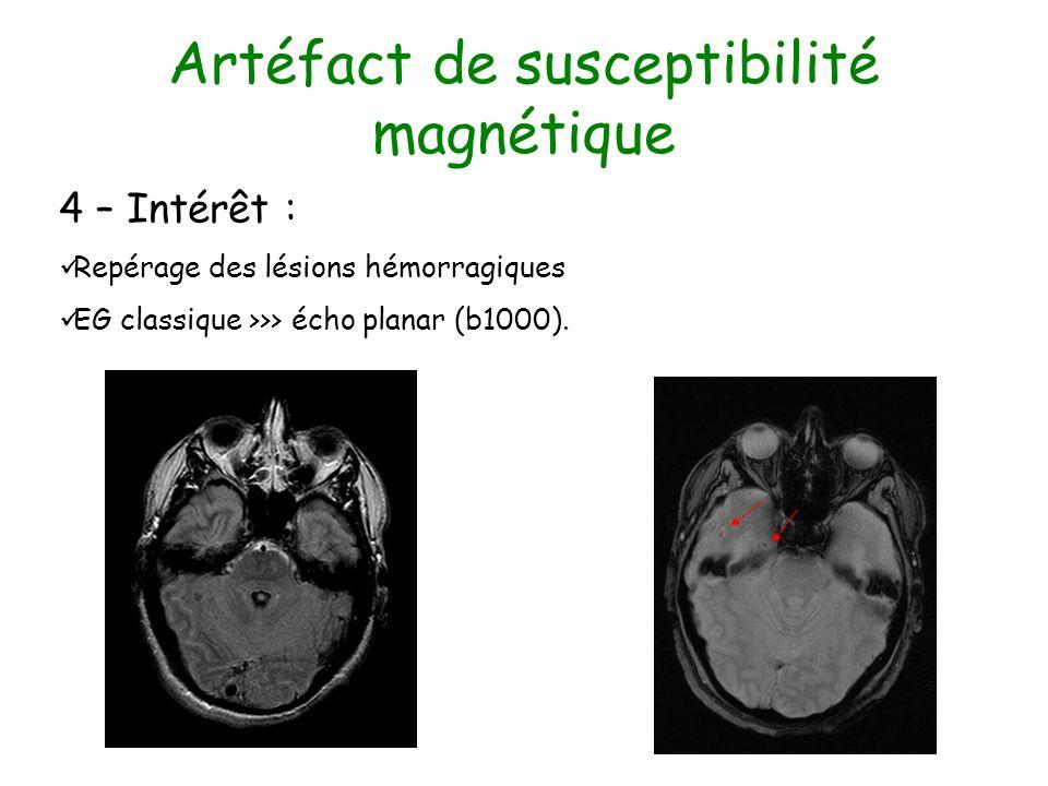 Artéfact de susceptibilité magnétique 4 – Intérêt : Repérage des lésions hémorragiques EG classique >>> écho planar (b1000).