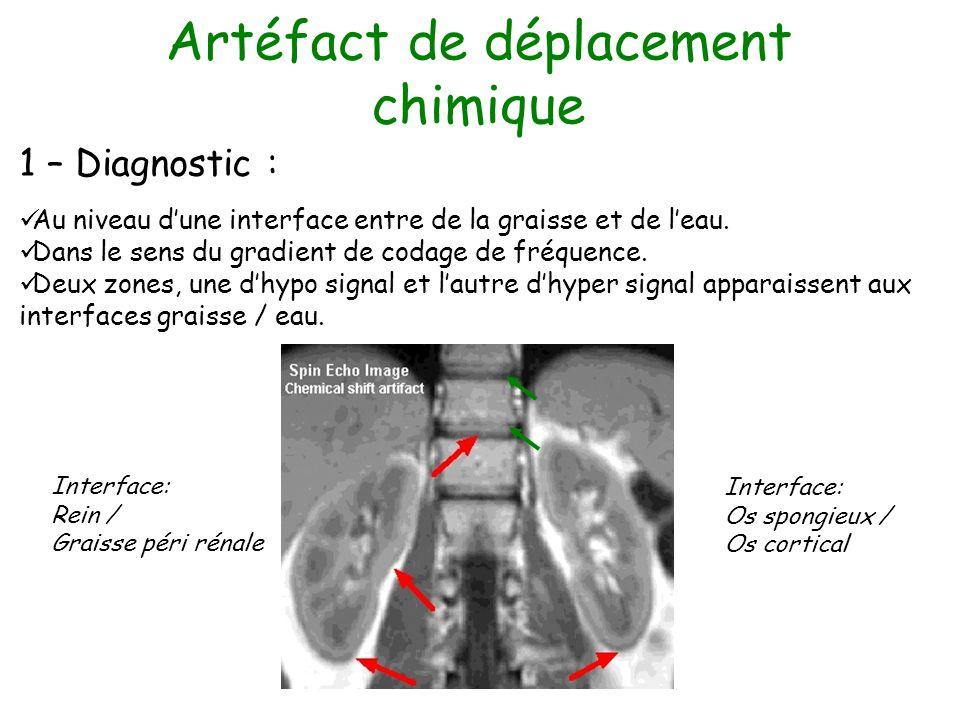 Artéfact de déplacement chimique 1 – Diagnostic : Au niveau dune interface entre de la graisse et de leau. Dans le sens du gradient de codage de fréqu