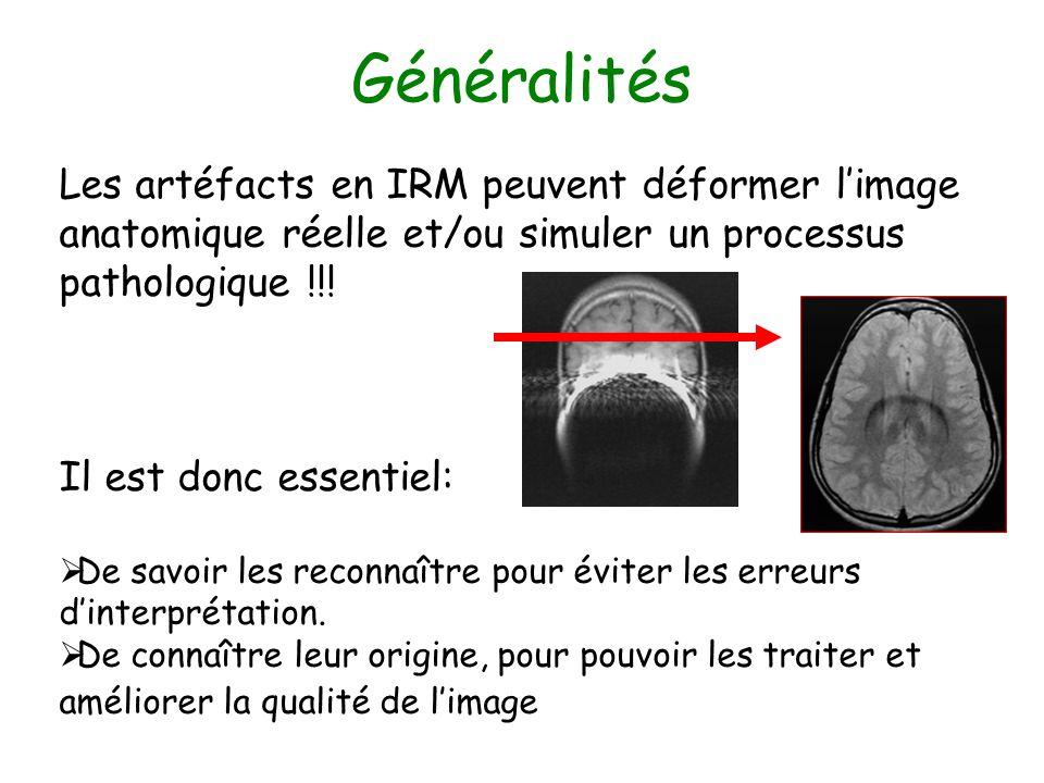 Les artéfacts en IRM peuvent déformer limage anatomique réelle et/ou simuler un processus pathologique !!! Il est donc essentiel: De savoir les reconn