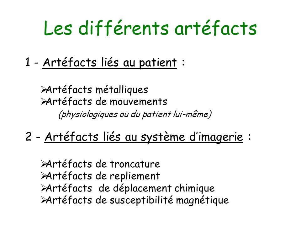 Les différents artéfacts 1 - Artéfacts liés au patient : Artéfacts métalliques Artéfacts de mouvements (physiologiques ou du patient lui-même) 2 - Art