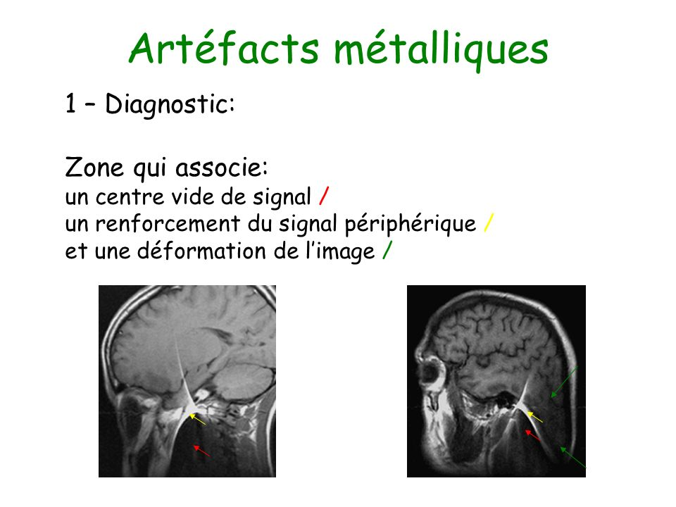 Artéfact de repliement (ou Aliasing) 1 – Diagnostic: Lorsque lobjet à imager est plus grand que le FOV.