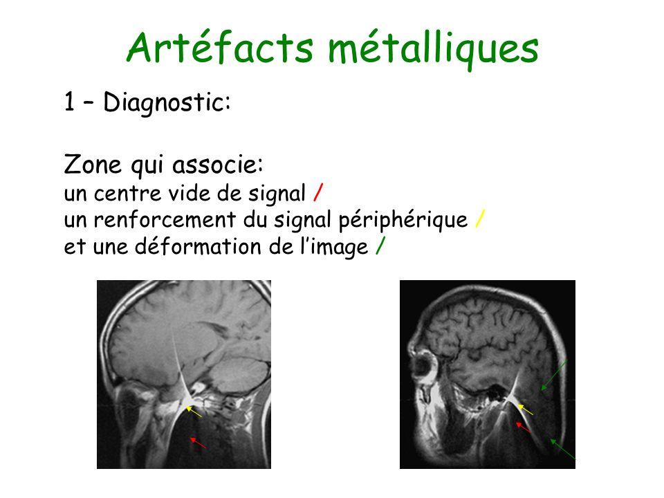 Artéfacts métalliques 1 – Diagnostic: Zone qui associe: un centre vide de signal / un renforcement du signal périphérique / et une déformation de lima